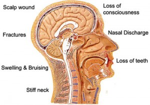Examples of Brain Injuries